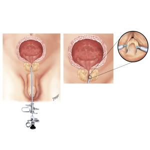 Ressecção transuretral (RTU) da próstata: um aparelho é introduzido pela uretra e é realizada a remoção da porção interna da próstata, em fragmentos.